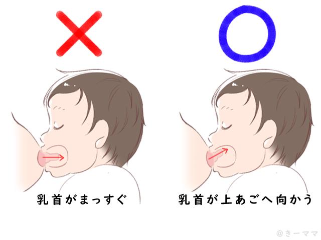授乳 ち 首 が 痛い 【助産師解説】おっぱいが痛い!乳房や乳頭が痛い時の主な6つの原因と...
